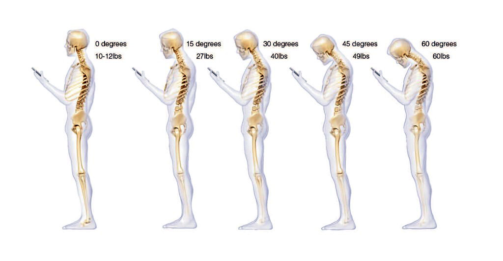 The Truth About Text Neck Syndrome